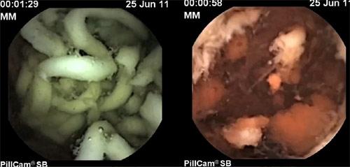 Foto de la izquierda: fideos industriales. Foto de la derecha: fideos hechos en casa.